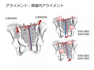 仙 腸 関節 テスト